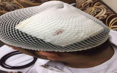 """تفاصيل اعتداء طالب على معلم نتج عنه """"6"""" غرز في رأسه"""